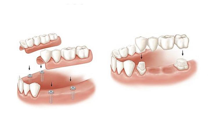 Dentique , chirurgie stomatologica Iasi , implant dentar Iasi